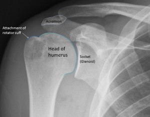 Shoulder surgery - rotator cuff repairs